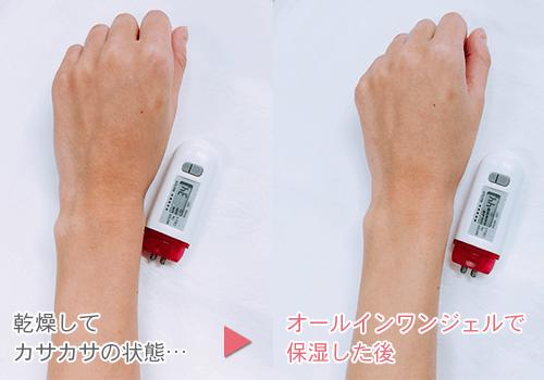 乾燥した手と保湿した手の比較の画像